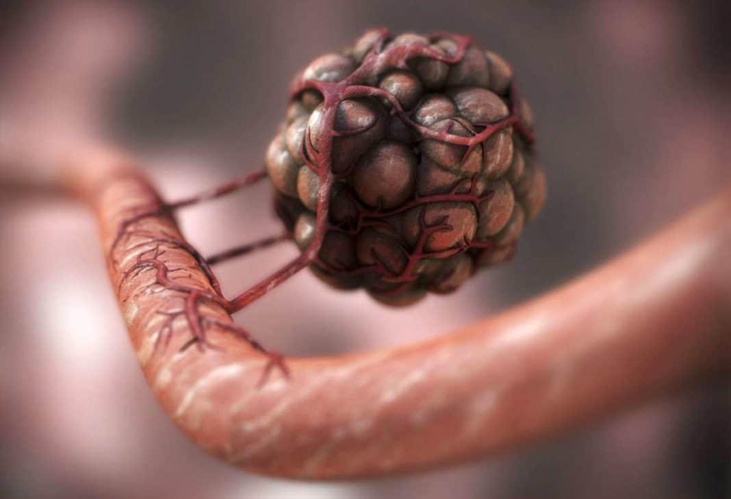 Когда впервые появился рак?