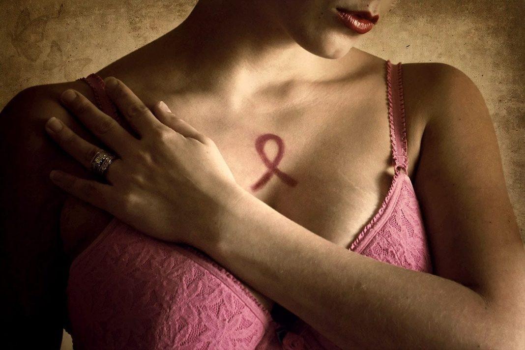 Мифы о раке молочной железы: что на самом деле вызывает онкологию?