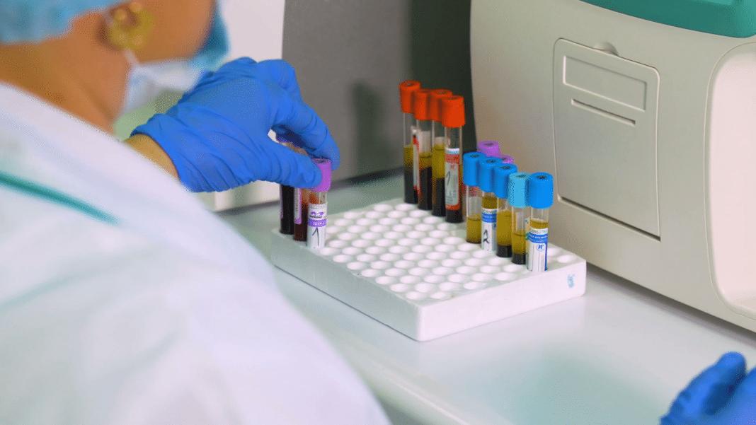 Онкомаркер CA72-4