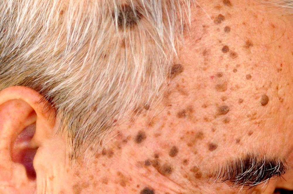 Себорейный кератоз кожи