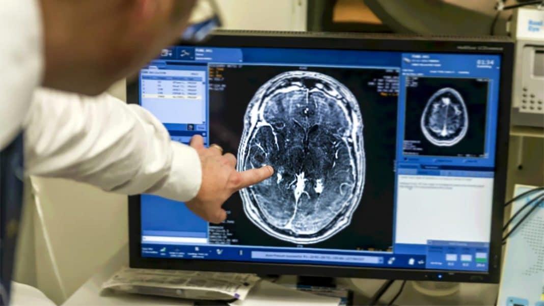 Что отнесли к начальным признакам рака мозга?
