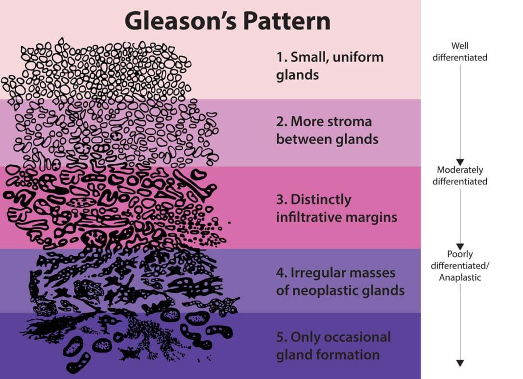 Шкала Глисона