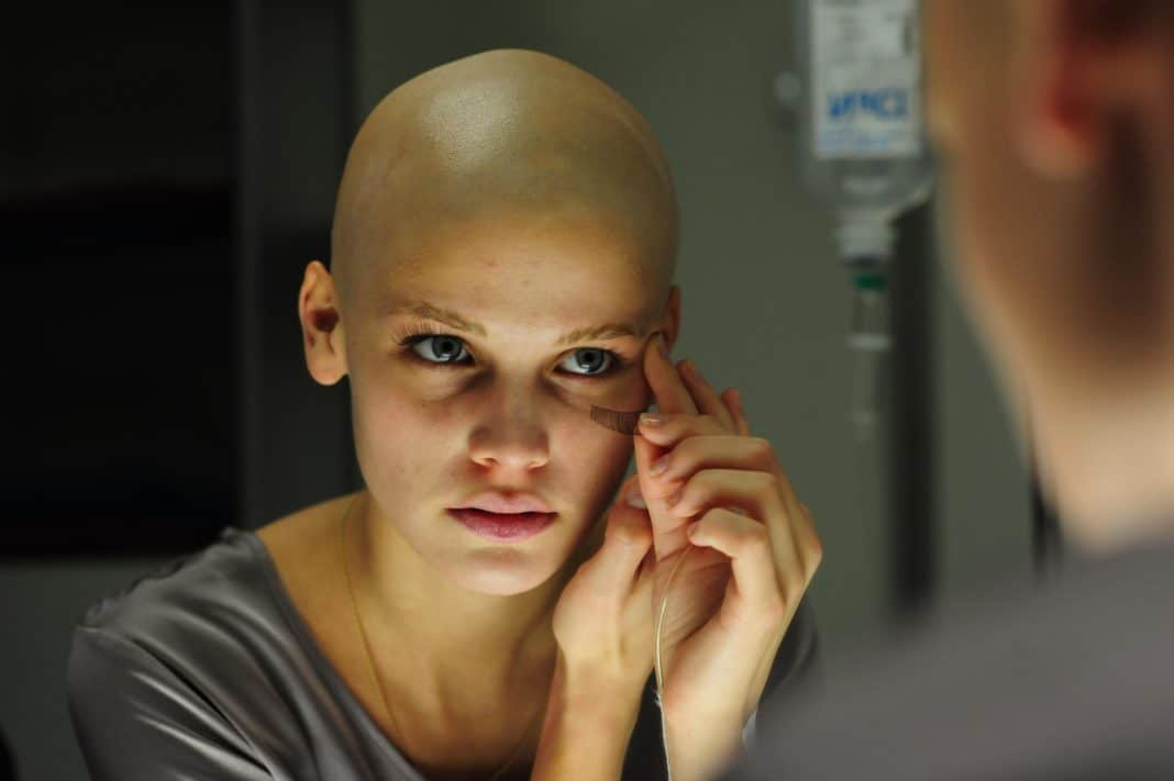 Можно ли сохранить волосы при хиимиотерапии?