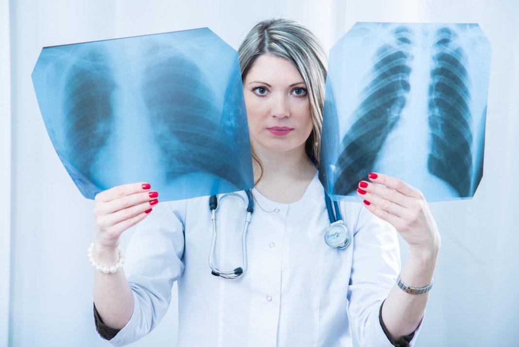 Почему рак легких возникает у некурящих людей?
