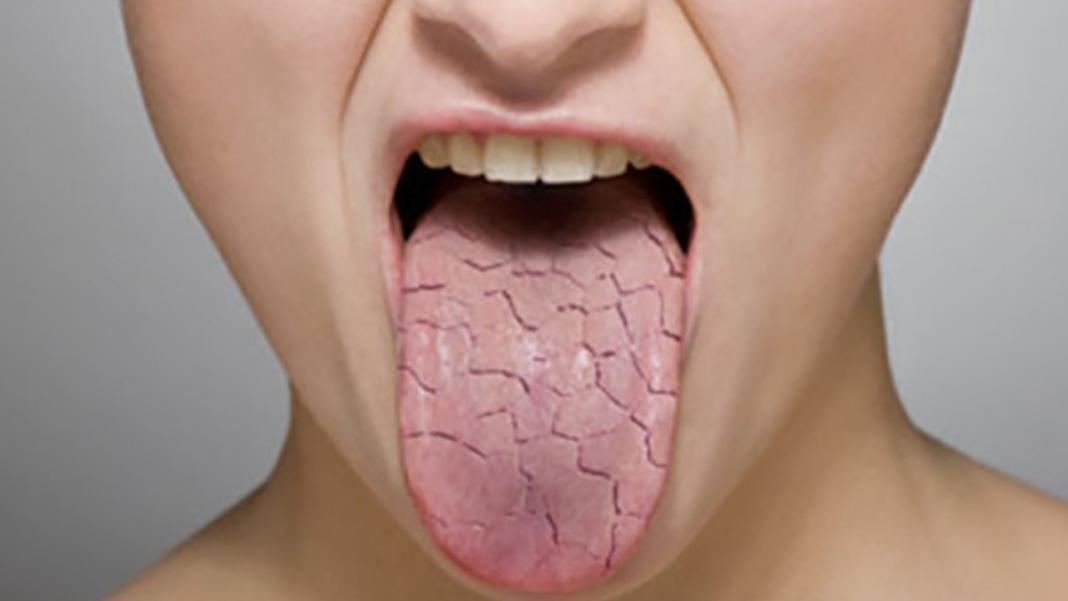 Язык при раке желудка