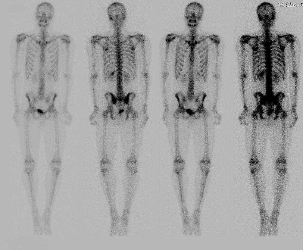 Остеосцинтиграфия скелета