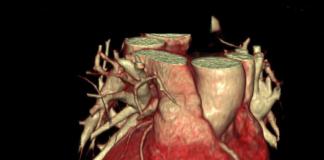 Томографию сердца
