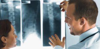 рентген при онкологии