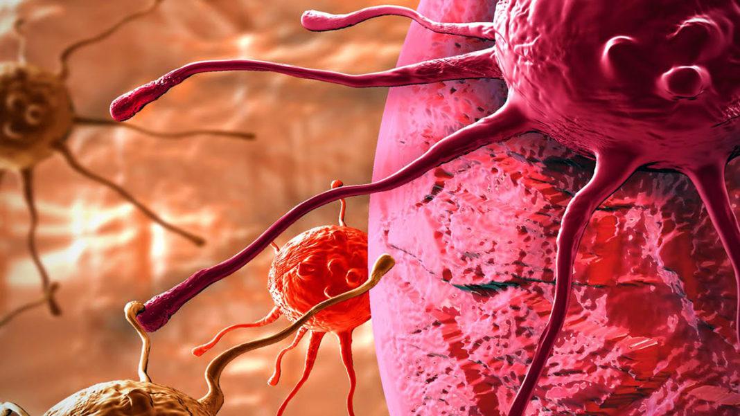 Рак у мужчин – врачи назвали самый опасный вид онкологической опухоли