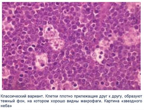 Гистология лимфомы Беркитта
