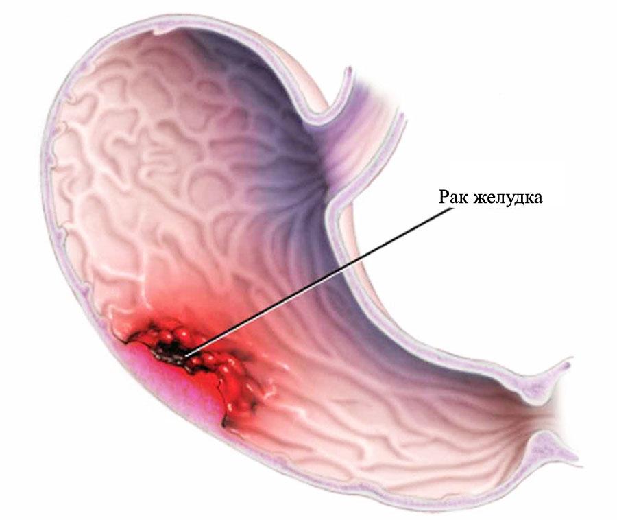 Фото рака желудка