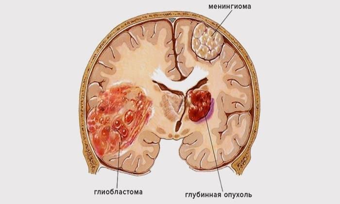 Как выглядит менингиома