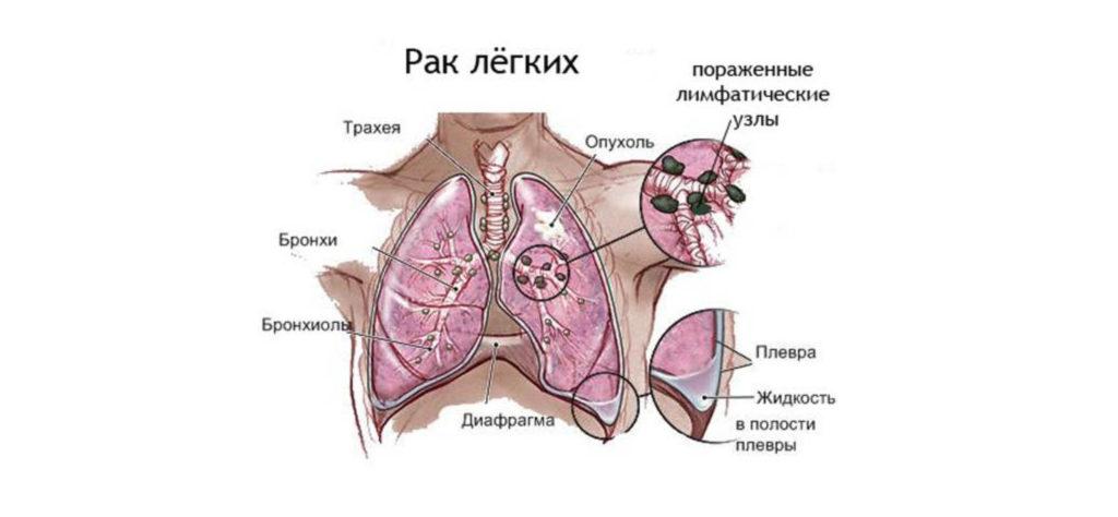 Карцинома эпителия бронхов