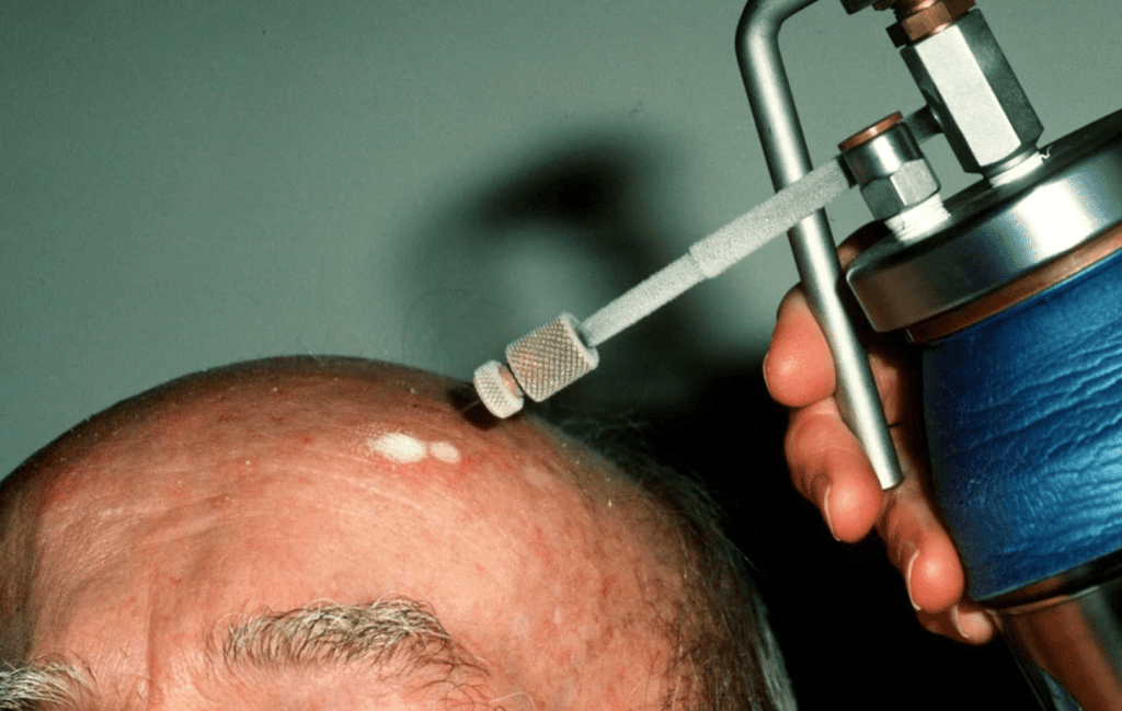 удаление бородавки на лбу жидким азотом
