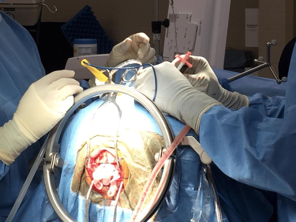 Операция краниотомия