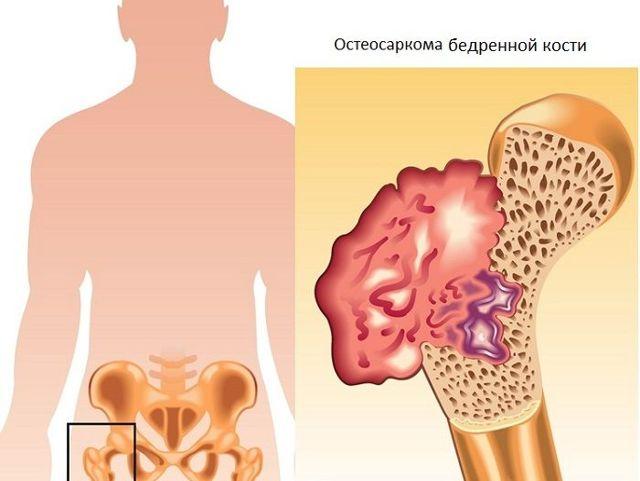 Остеосаркома костной ткани