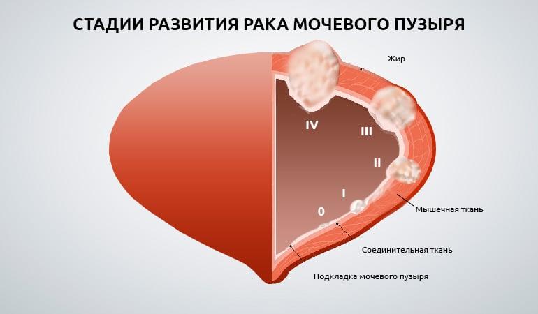 Рак мочевого