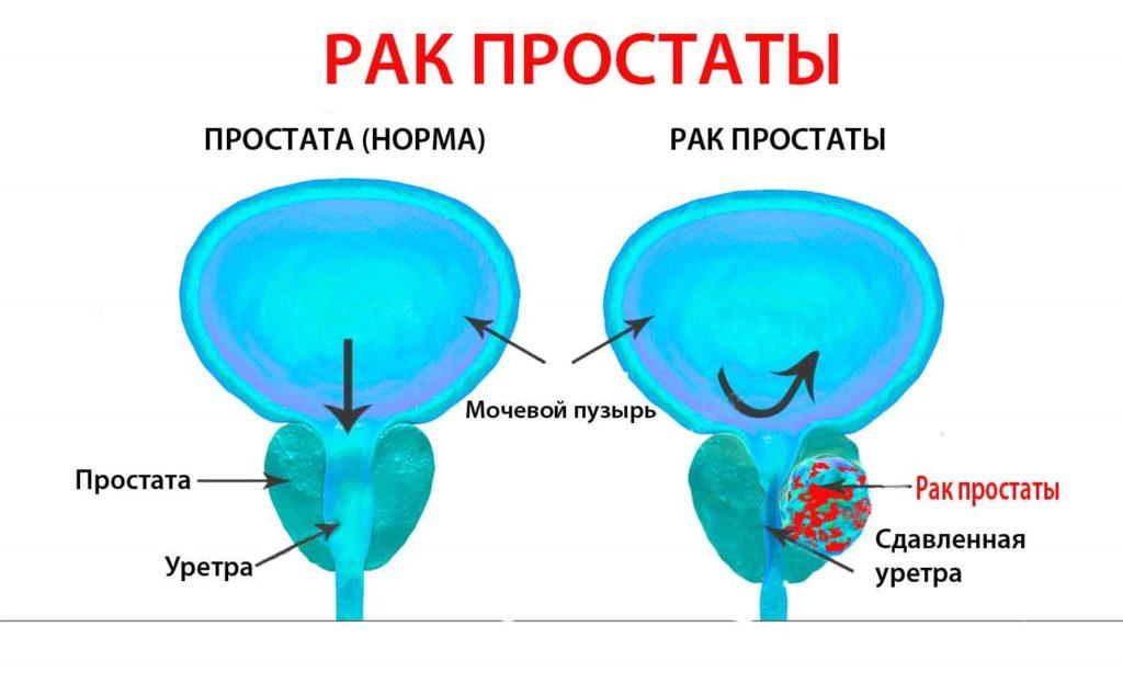 Рак простаты схематичное изображение