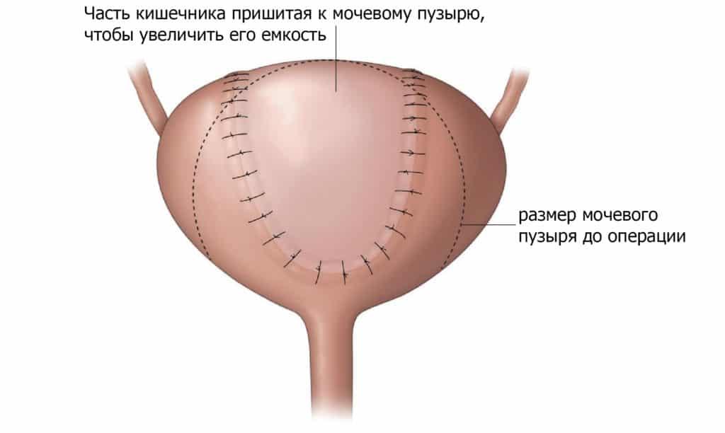 Реконструкция нового мочевого пузыря из части кишечника