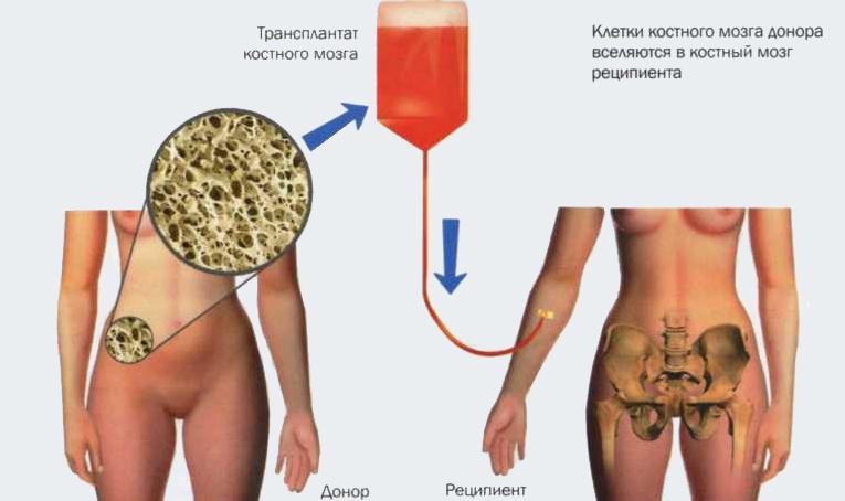 Схема трансплантации костного мозга