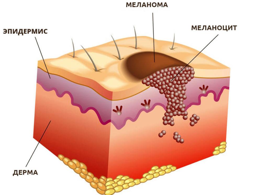 Схематичное изображение меланомы