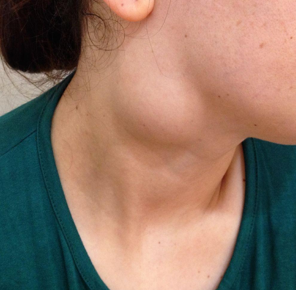 Фото пациента с лимфогранулемаматозом