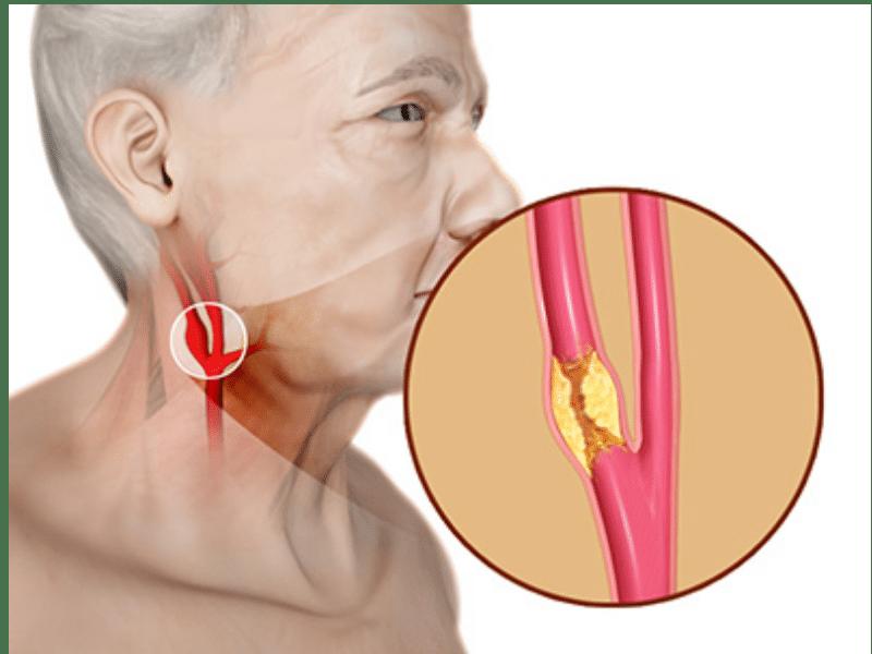 Хомедоктома сонной артерии