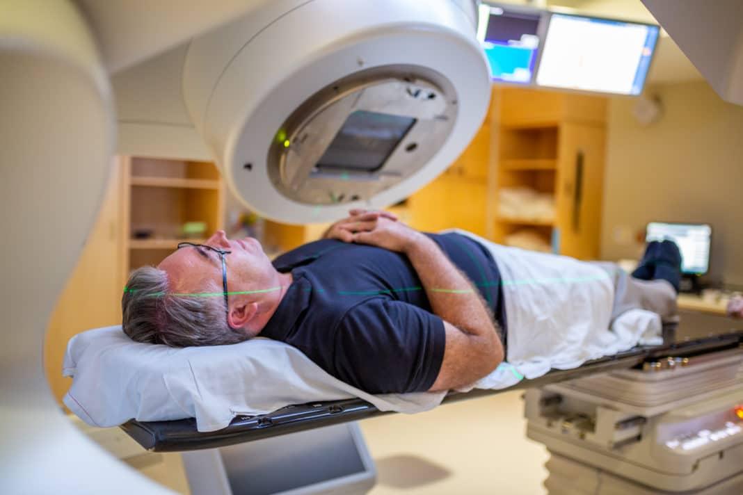 Лучевая терапия как метод лечения опухолей ЦНС