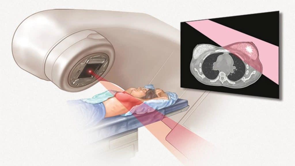 Лучевая терапия молочной железы