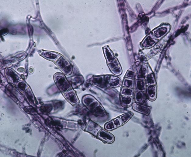 Микозы под микроскопом
