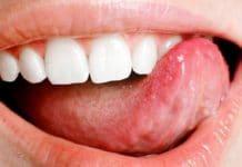 Онкологические патологии языка