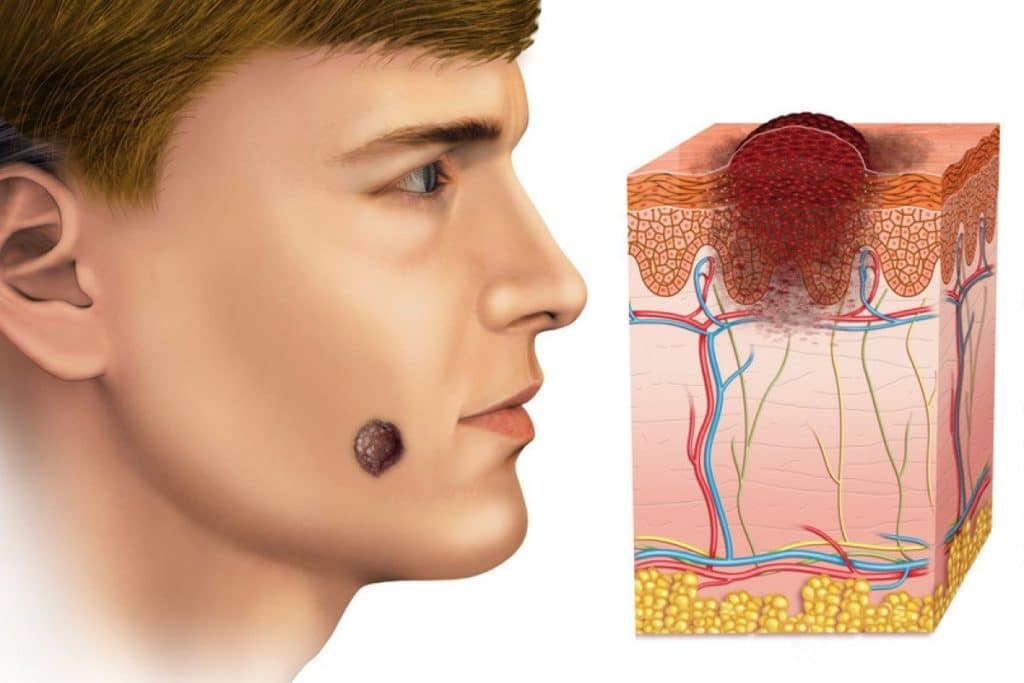 Онкология лица схематичное изображение