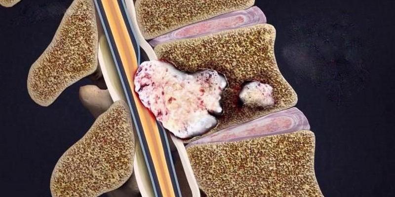 Онкология костной ткани позвоночника