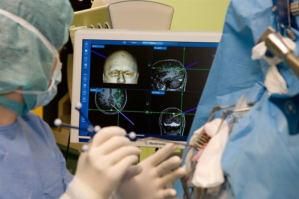 Оперативные методики лечения онкологии головного мозга