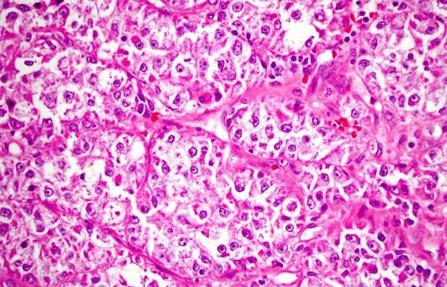 Саркома под микроскопом