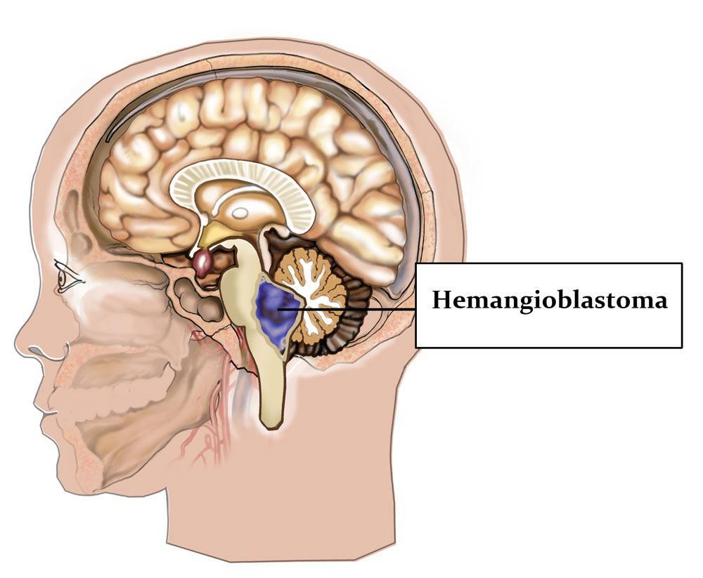 Схематичное изображение анатомического расположения гемангиобластомы