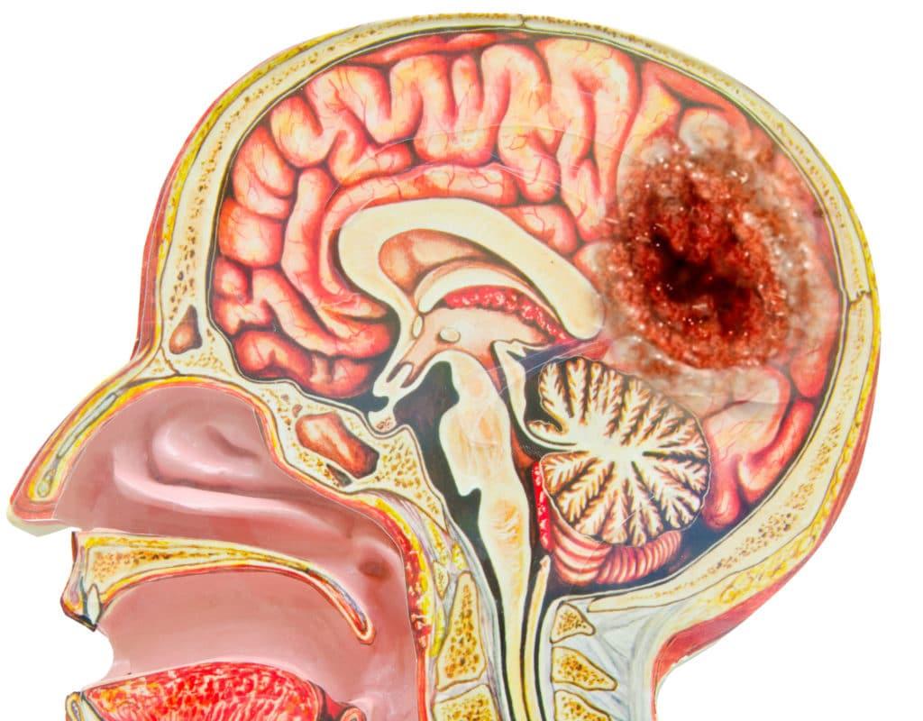 Схематичное изображение герминомы головного мозга