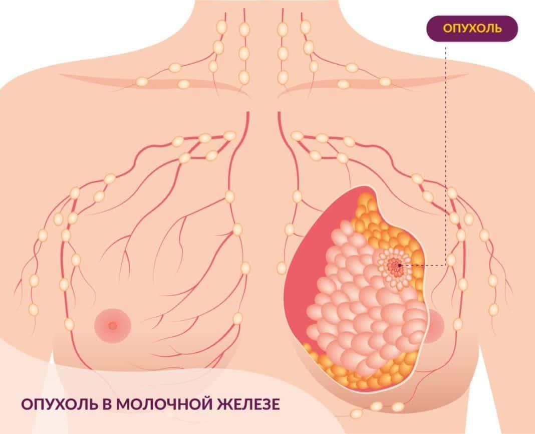 Схематичное изображение оноколгии молочной железы