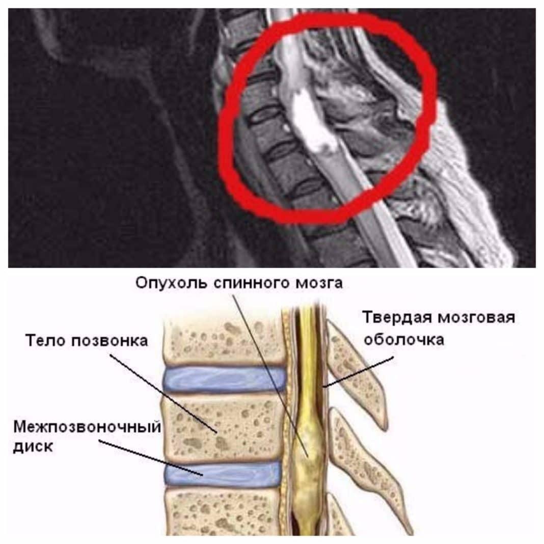 Схематичное изображение опухоли позвоночника