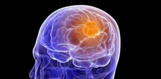 доброкачествееные опухоли мозга