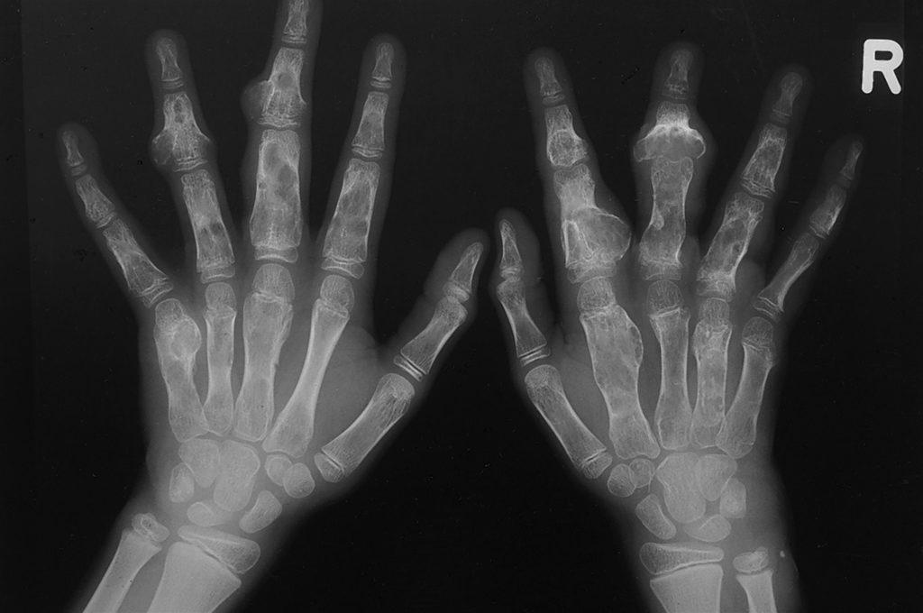 Рентгеновский снимок хондромы костей кисти