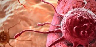 клетки раковой опухоли