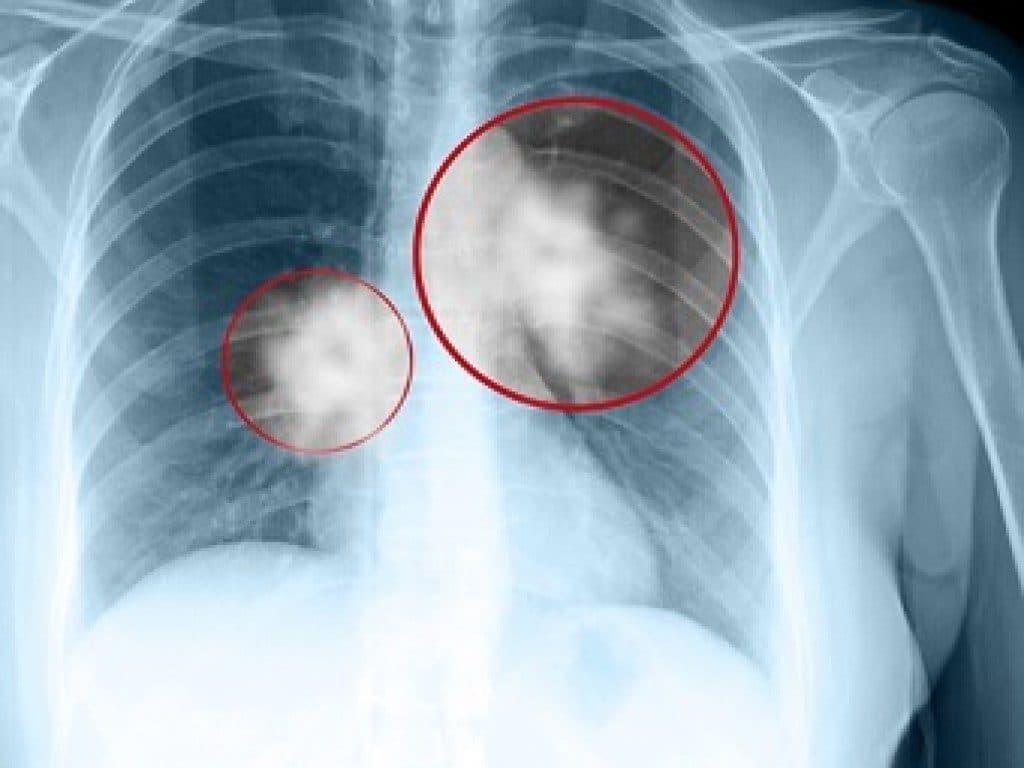 Онкологический процесс в легких