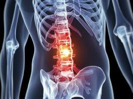 опухоли спинного мозга