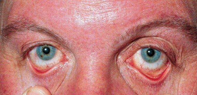 Покраснение склер при эритремии