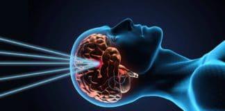Лучевая терапия в онкологии