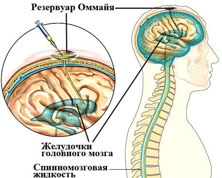 Методика применения резервуара Оммайя в нейрохирургии